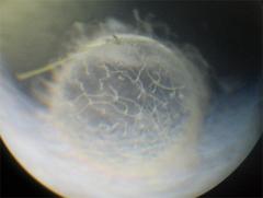 顕微鏡で見たメダカの卵
