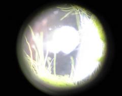 メダカの卵1日目